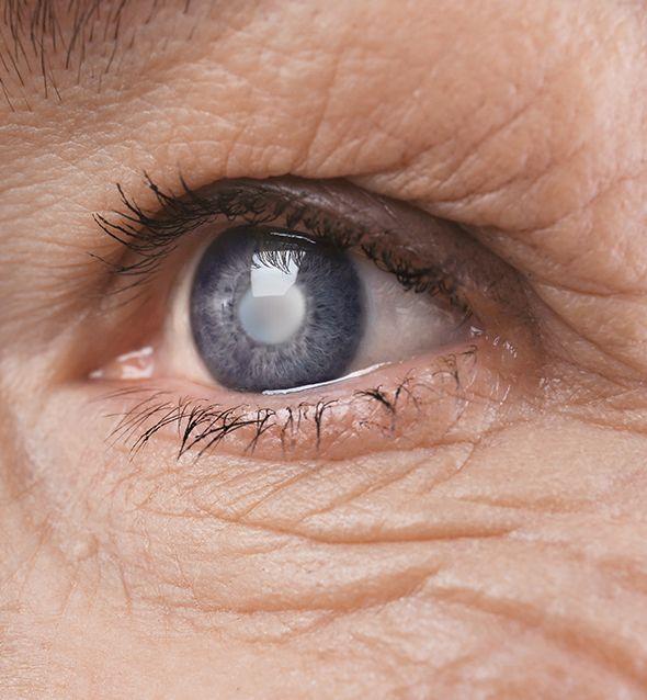 Prise en charge de la maladie de la cataracte à Paris 5 au Centre ophtalmologique COSS