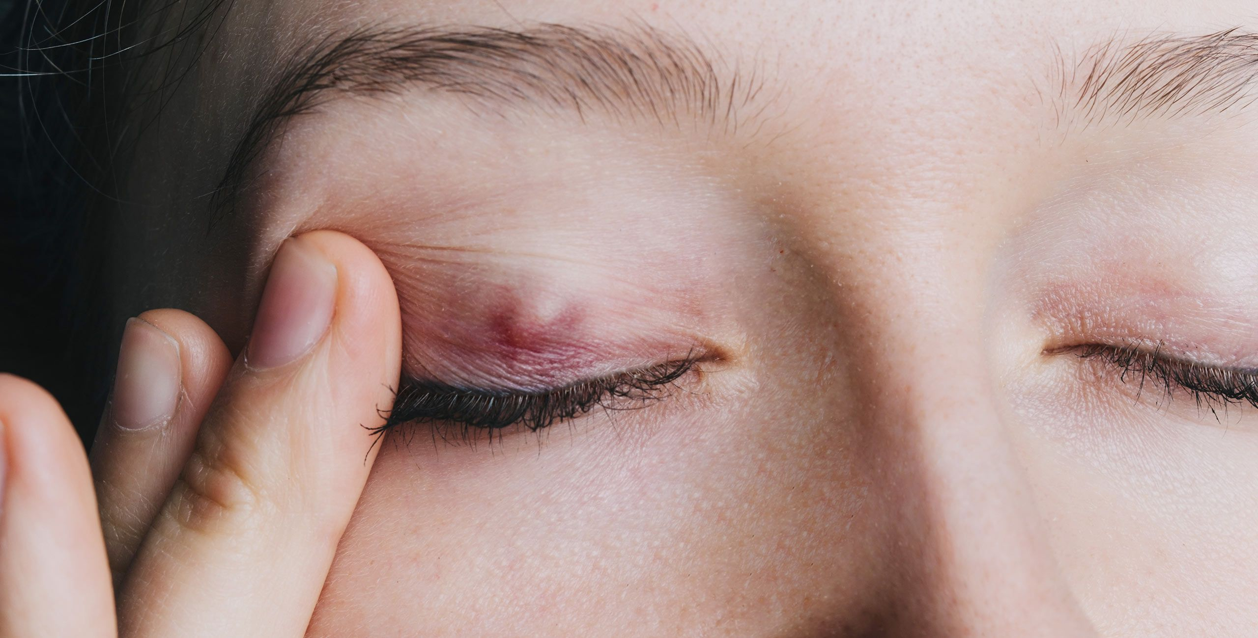 La pathologie de chalazion à Paris 5 au Centre ophtalmologique COSS