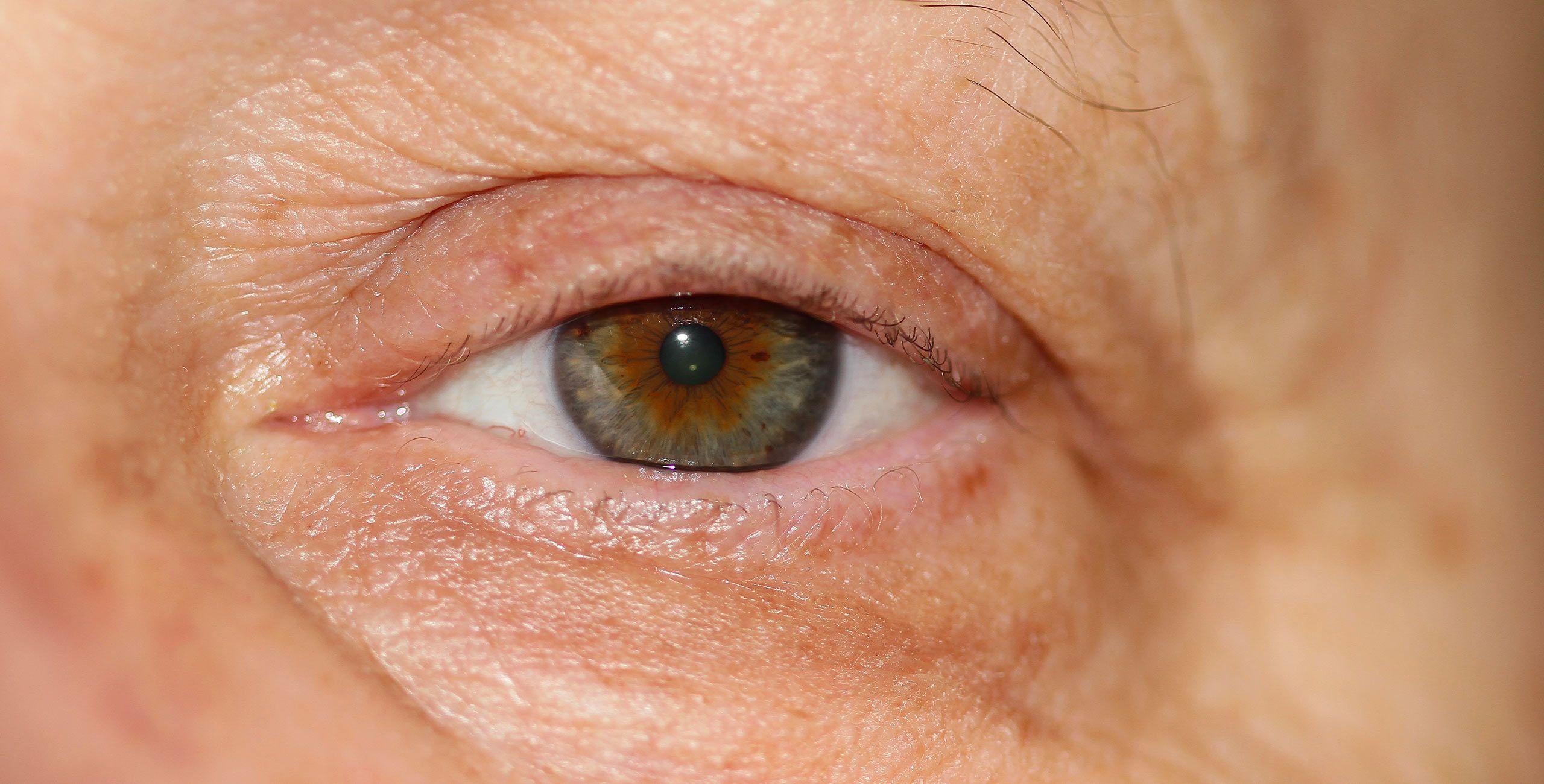 Traitement du dermatochalasis à Paris 5 au Centre ophtalmologique COSS