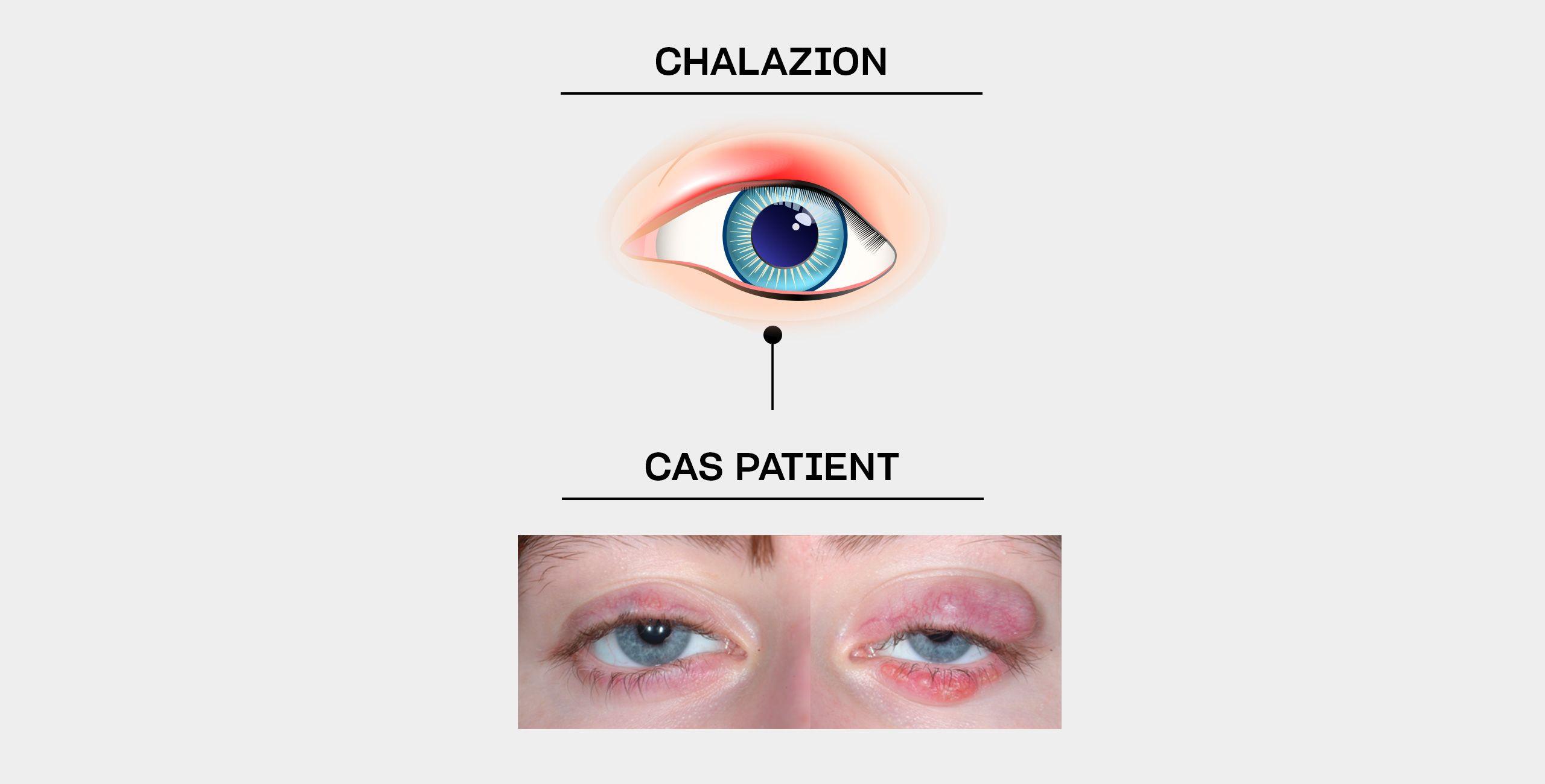La chirurgie du chalazion à Paris 5 au Centre ophtalmologique COSS