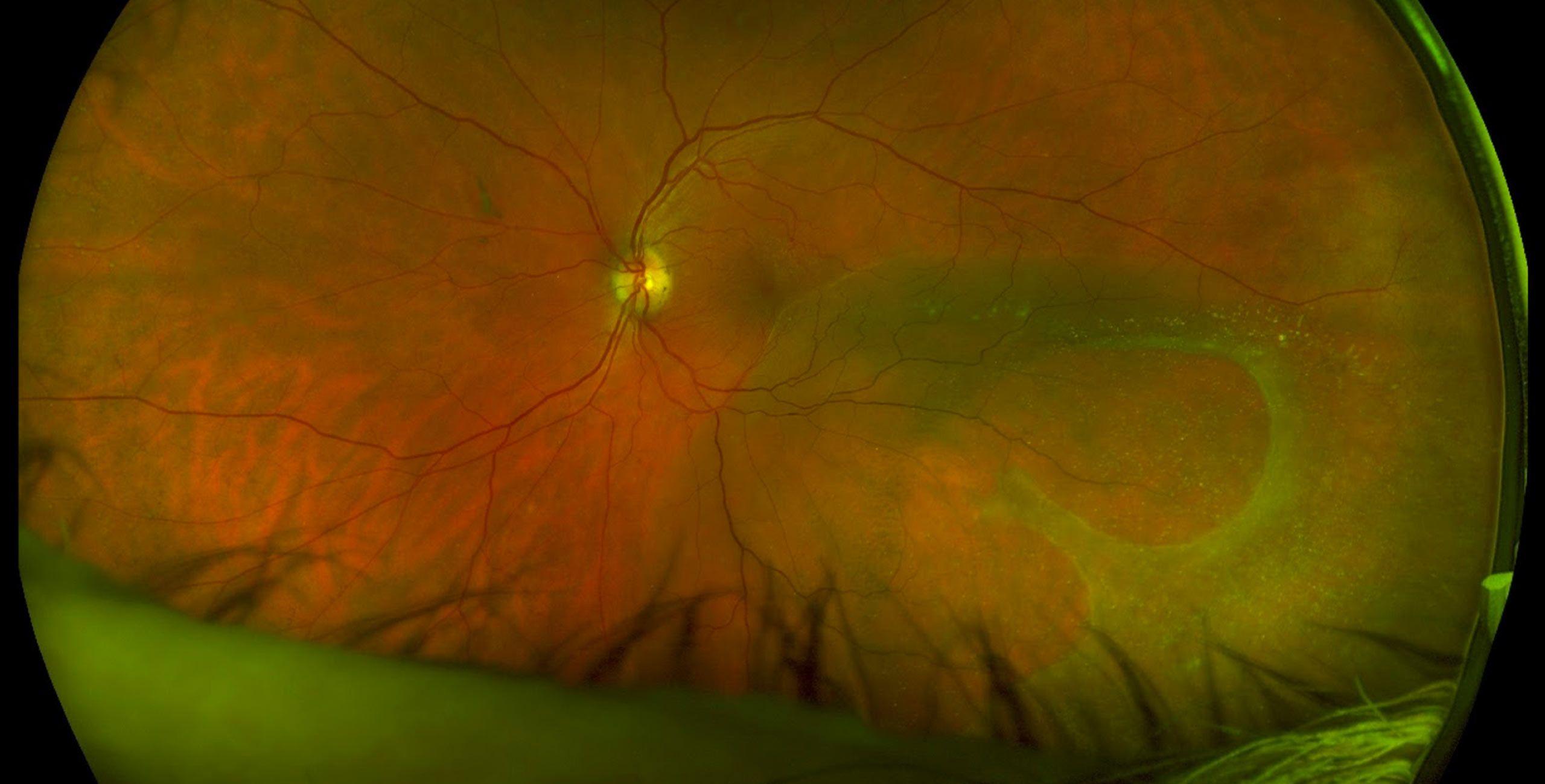 La chirurgie de la rétine à Paris 5 au Centre ophtalmologique COSS