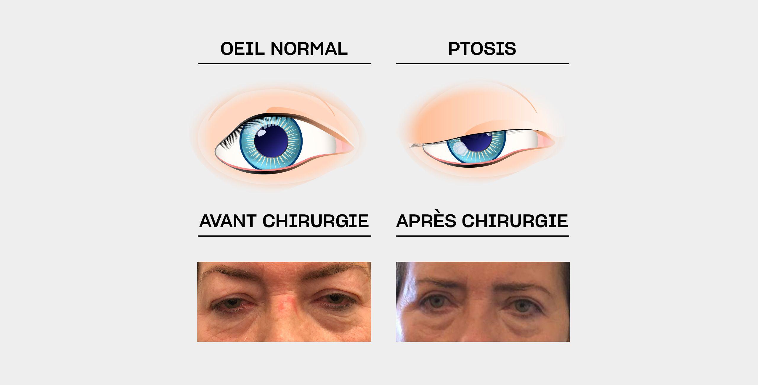 Le traitement du ptosis à Paris 5 au Centre ophtalmologique COSS