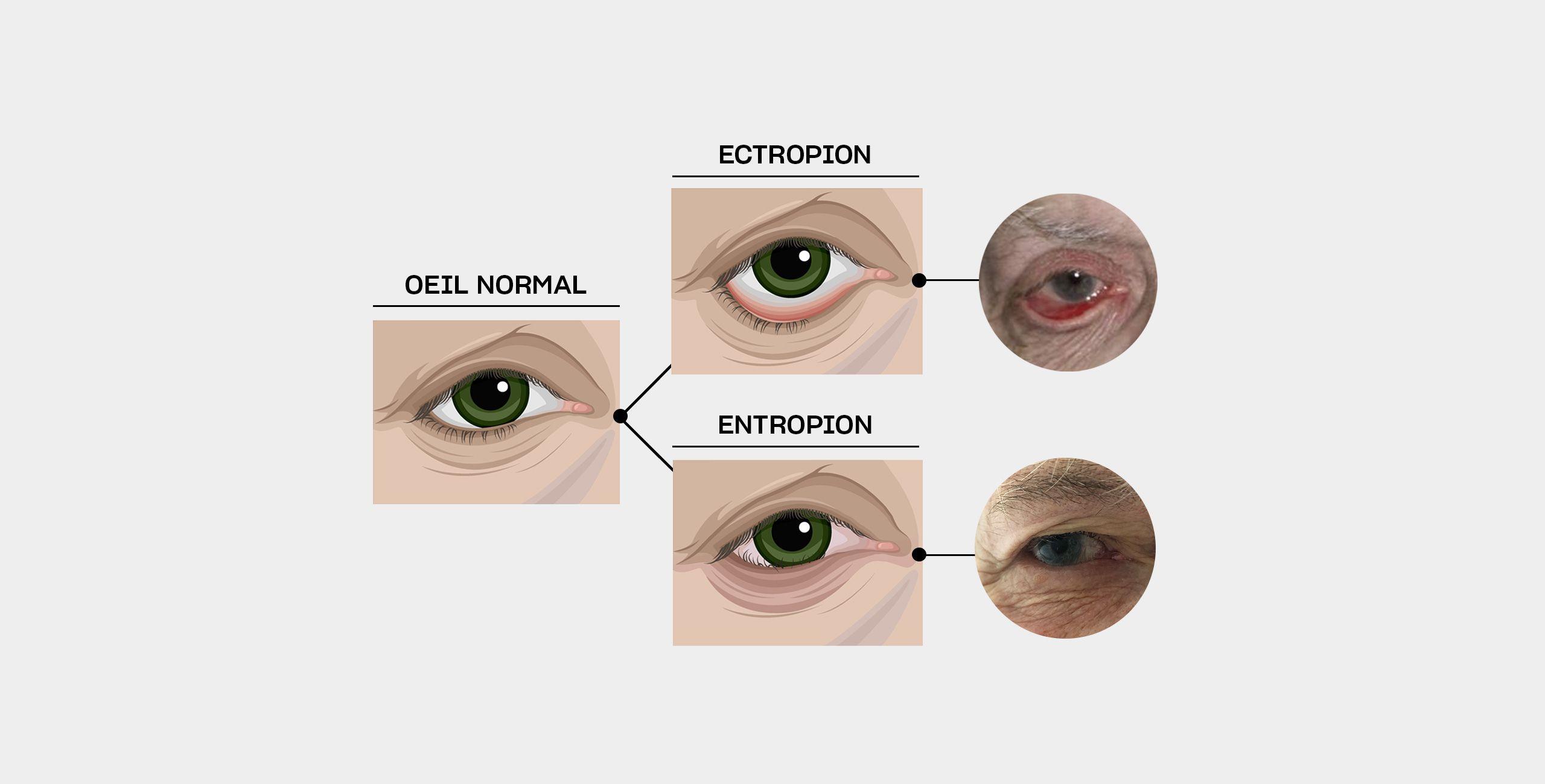 Le traitements de l'entropion et de l'ectropion à Paris 5 au Centre ophtalmologique COSS