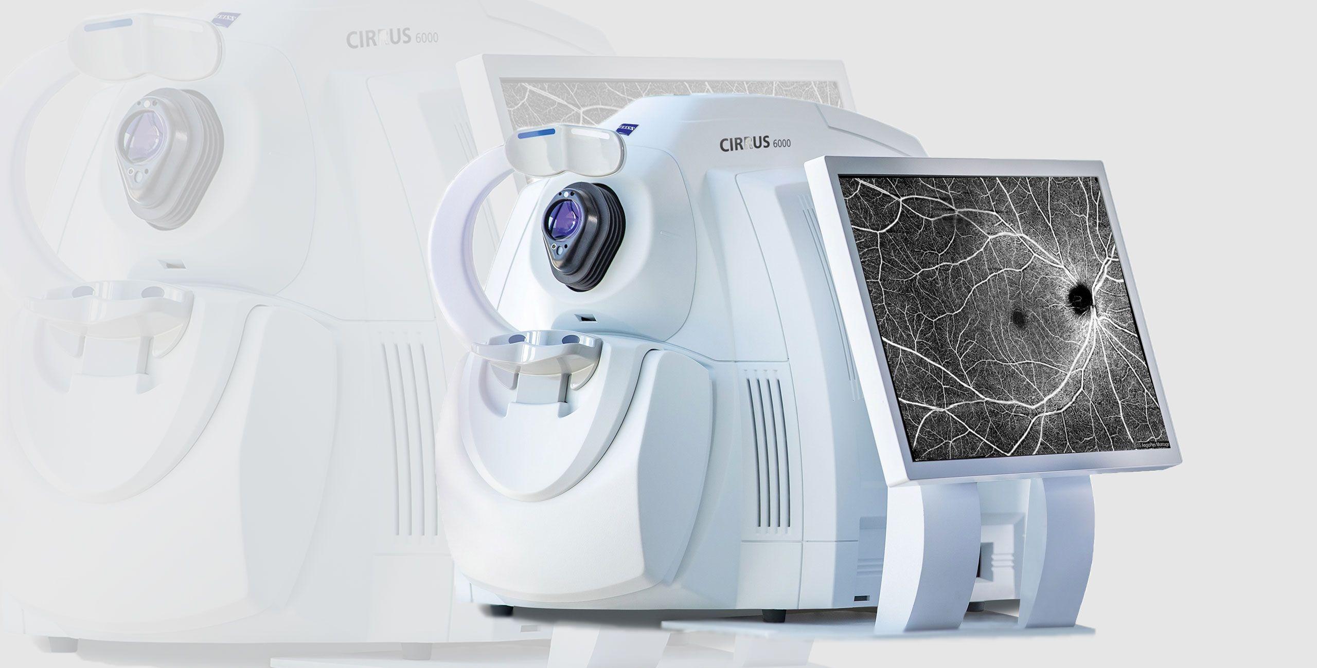 La Tomographie à Cohérence Optique - Centre ophtalmologique COSS Paris 5