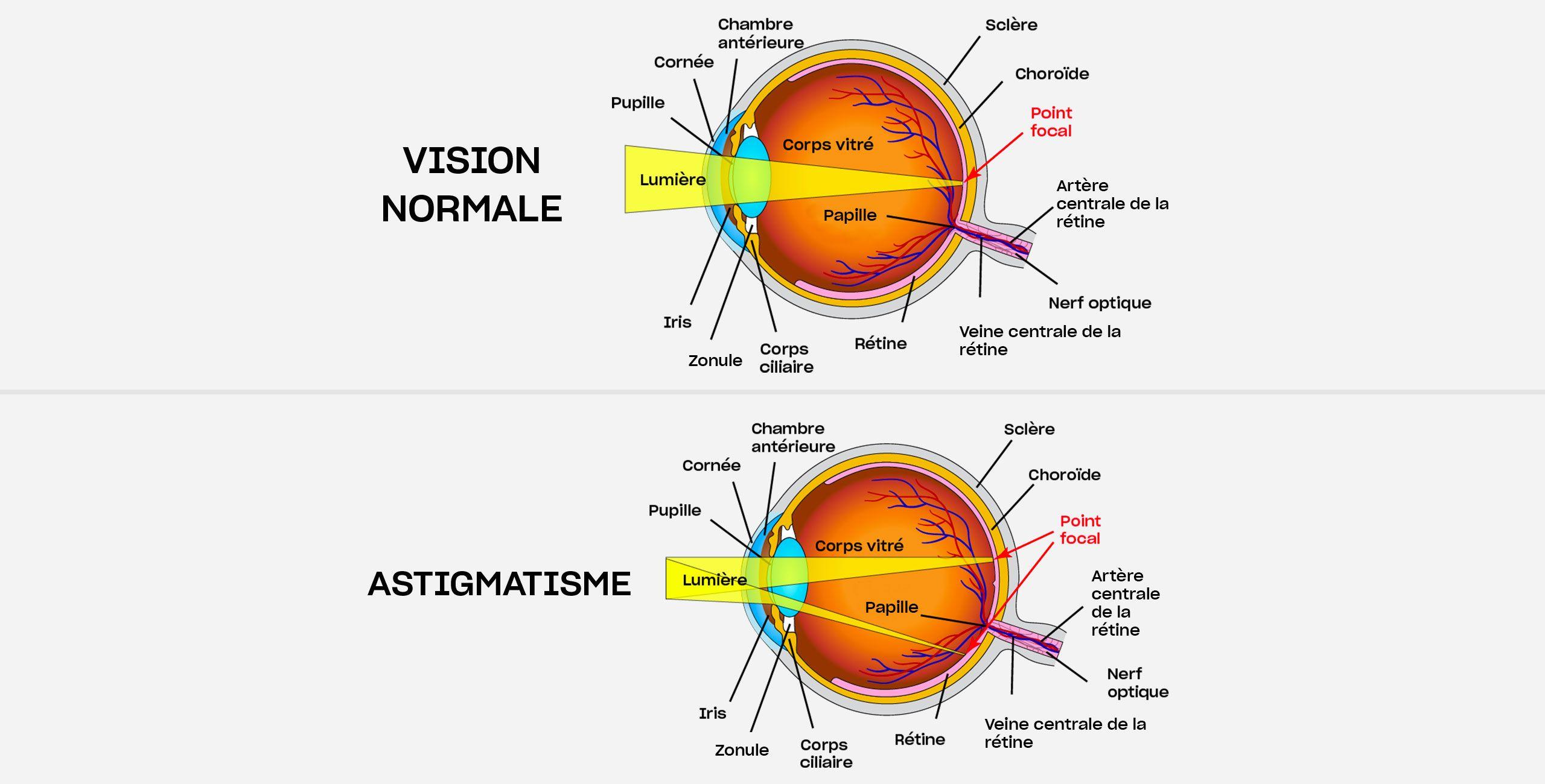 L'astigmatisme - Centre ophtalmologique COSS Paris 5