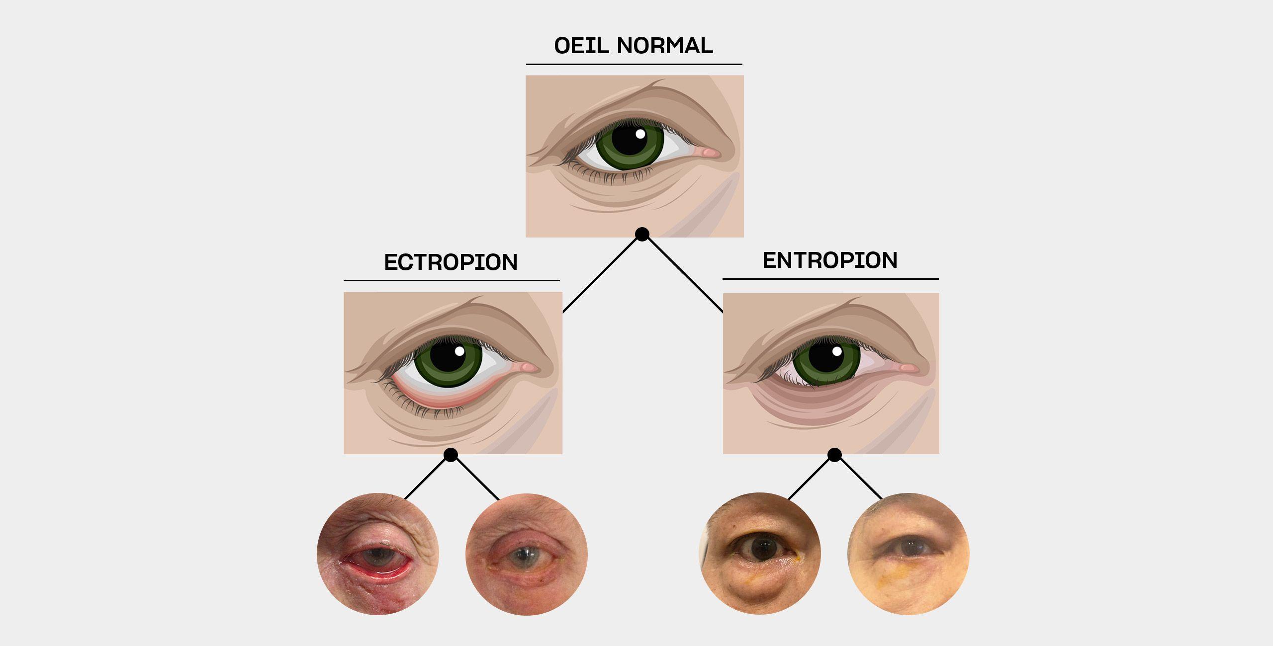 La chirurgie de l'entropion et de l'ectropion à Paris 5 au Centre ophtalmologique COSS