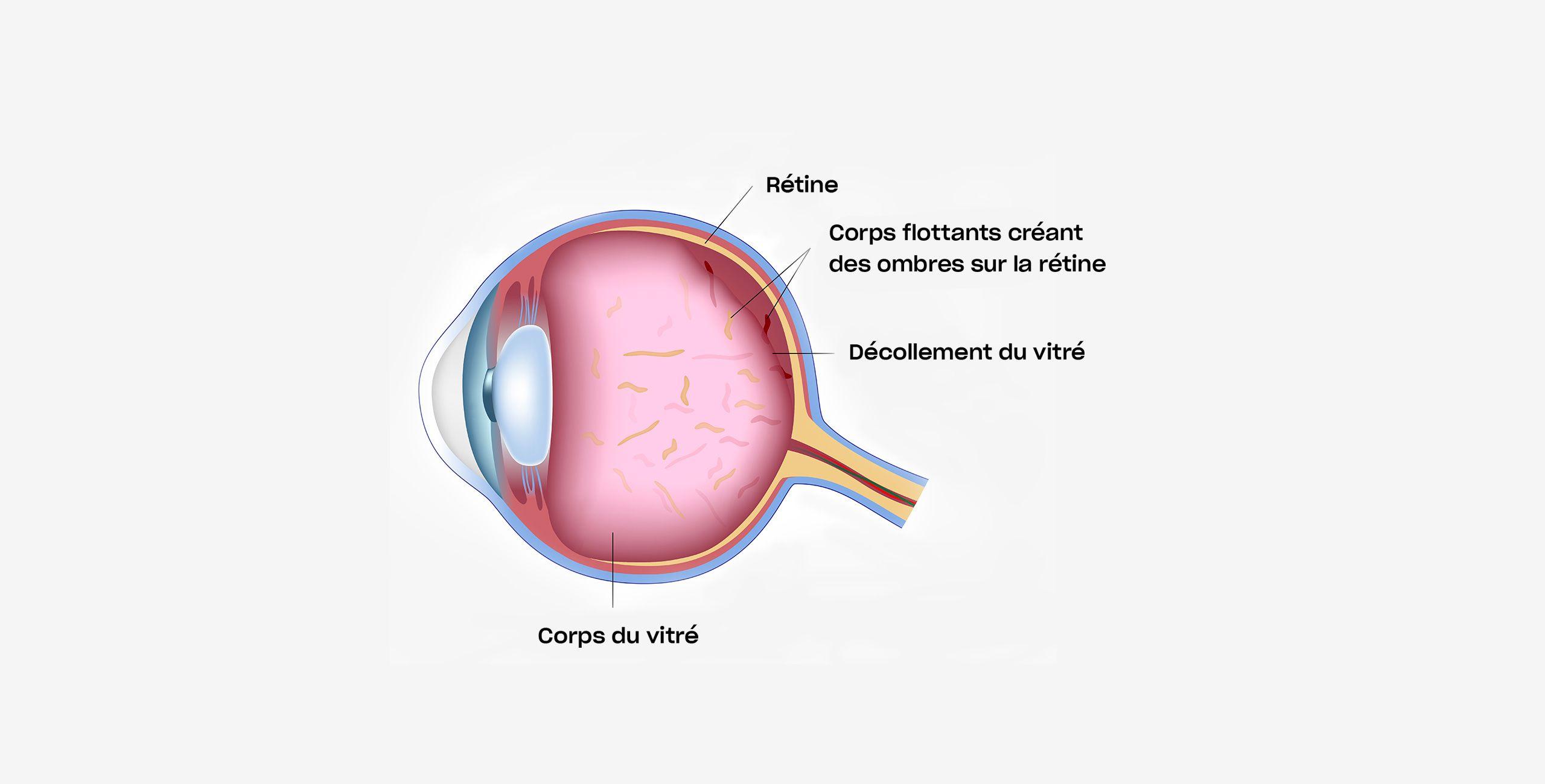Le décollement postérieur du vitré traitement à Paris 5 au Centre ophtalmologique COSS