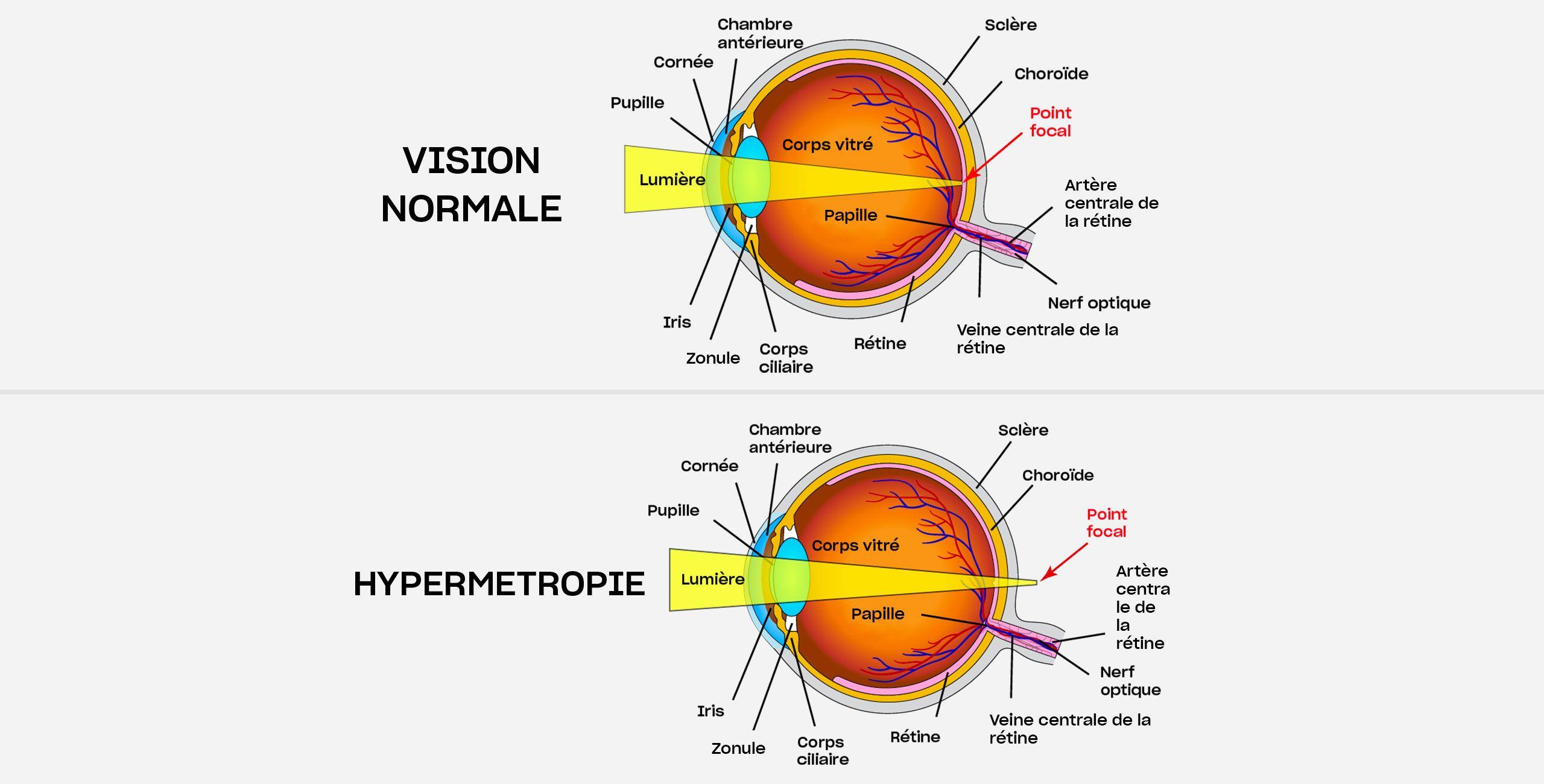 L'hypermétropie à Paris 5 - Centre ophtalmologique COSS