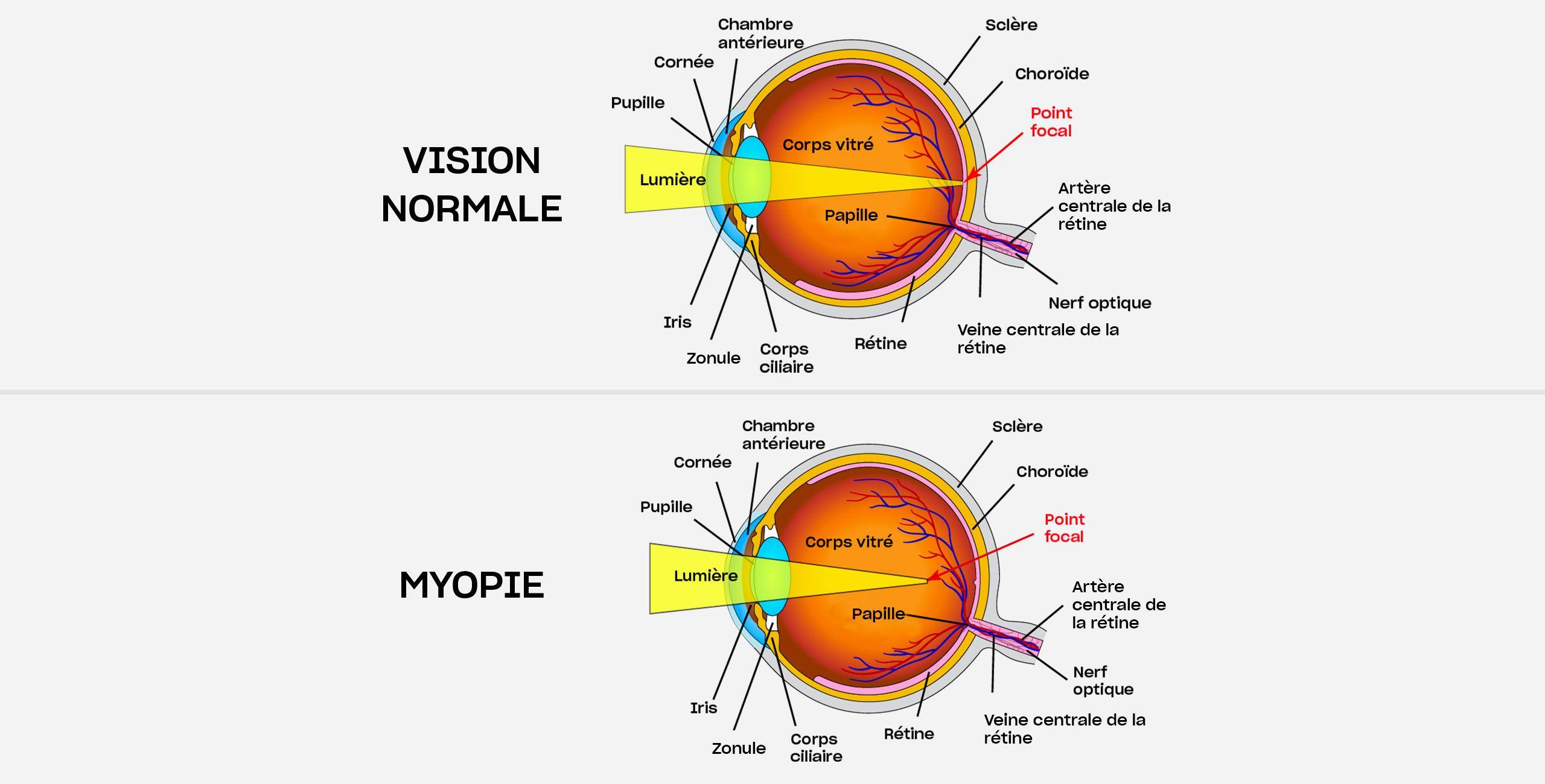 La myopie à Paris 5 au Centre ophtalmologique COSS